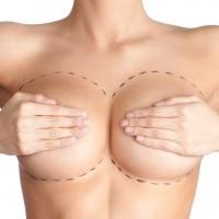 Aumento das mamas