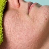 Cicatriz de Acne
