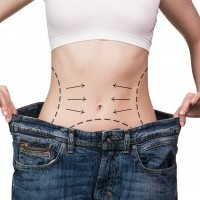 Contorno Corporal Pos-Obesidade